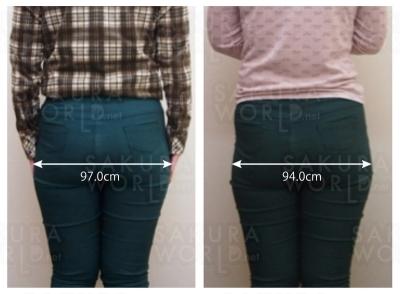 週1回 1ヶ月目で-3cm