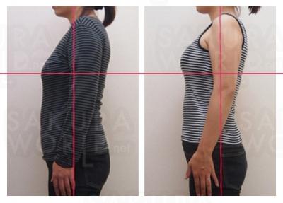 《バストアップ》週1回 6ヶ月で-4.5kg