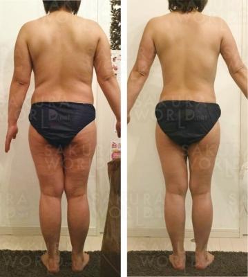 30代M様 1ヶ月-6.8kg! 腹部-9.2cm!
