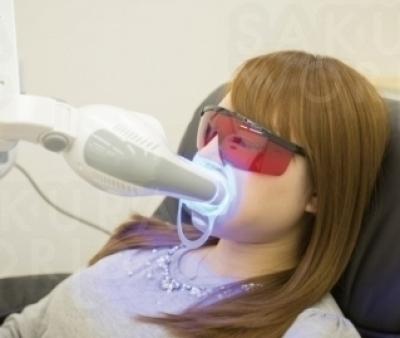 自信の持てる白く美しい歯へのお手伝い!
