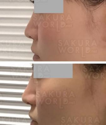 鼻だけでなく、顔のバランスも整える!
